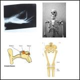 Free Skeletal System Worksheets   edHelper.com